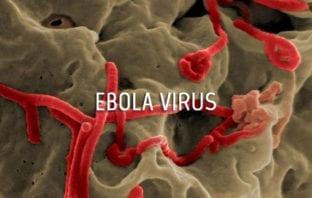Ebola Disease Virus Virions