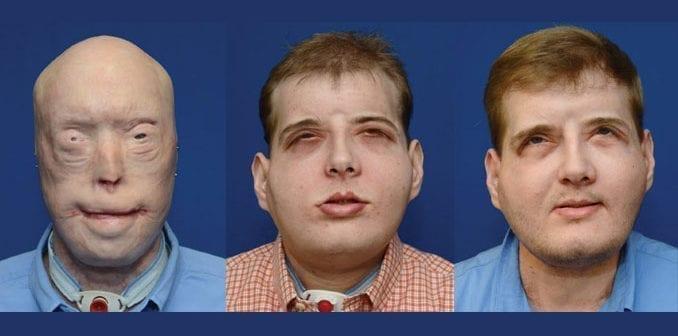 Firefighter Burn Injury Transplant