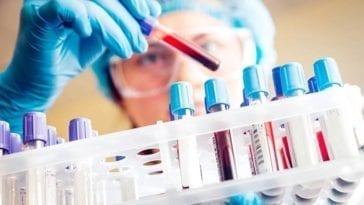 Million Veteran Program Biomarker Profiling